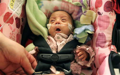 Ребенок 24 недели